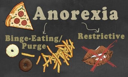 Anorexia illustrated with Classification. Two types: Binge-Eating/Purge and Restrictive Eating Disorder
