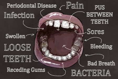 Ugly Teeth, open Mouth and Symptoms of Gum Disease. Illustrated on Blackboard in Classic Drawing Style Stock Photo