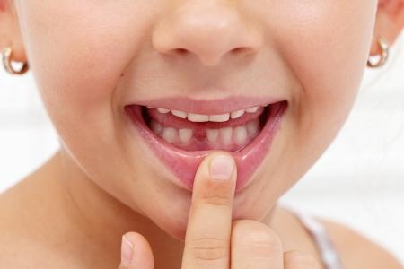 Dziewczynka pokazuje przepaść swojej pierwszej brakującej mleczak