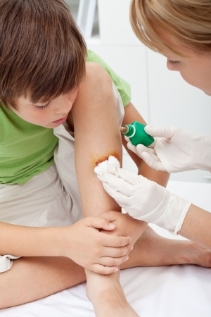 Medyczny opieki nad małym kontuzji nogi chłopca - zbliżenie