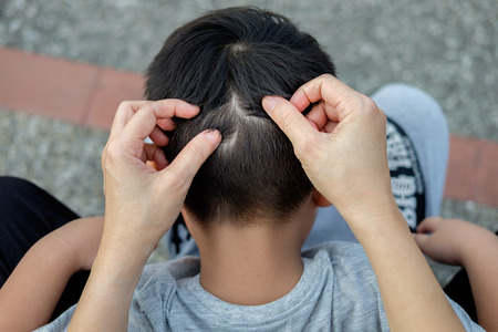 Mother is catching hair to find lice and treatment hair in children.