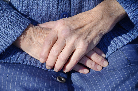 aging woman: Wrinkled hands of an old woman    aging process