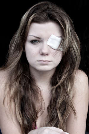 eye patch: Young woman with eye patch