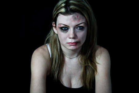 Beaten white woman pretending with cuts and bruises with a black background