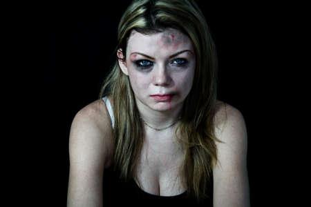 mujer golpeada: Mujer golpeada blanco pretendiendo con cortes y contusiones con un fondo negro Foto de archivo