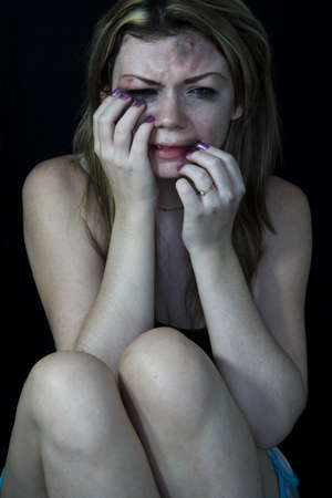 battered woman: Scared and beaten white woman pretending sitting in pain and crying   Stock Photo