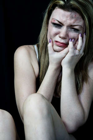 Beaten white woman pretending crying and holding her face in pain on a black background  photo