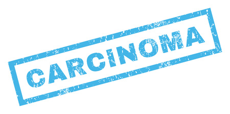 carcinoma: Carcinoma text rubber seal stamp watermark. Caption inside rectangular banner with grunge design and dust texture. Inclined vector blue ink sticker on a white background. Illustration