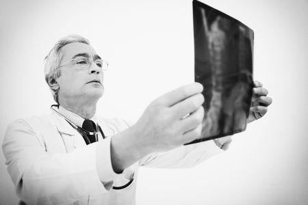 Doctor examining x-ray photo
