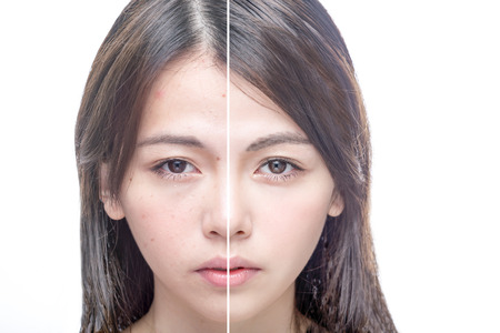 Asian woman's face, beauty concept, before and after Imagens