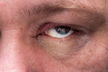 Close up of eye infection with swollen eyelid