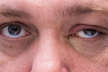 pus: Primo piano di infezione agli occhi con palpebre gonfie