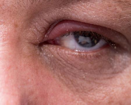 Close up von Augeninfektion mit geschwollenen Augenlid Standard-Bild - 52358923