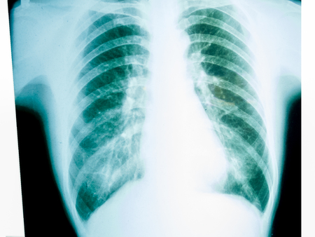 X-ray of a human male chest