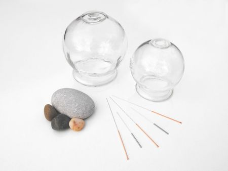 cupping: Acupuncture needles with cupping jars Stock Photo