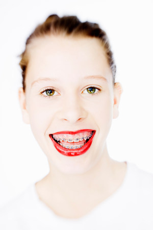 Woman in braces wearing red lipstick