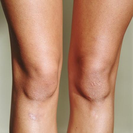 Female knee Archivio Fotografico
