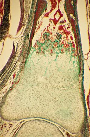 Developing foetal bone