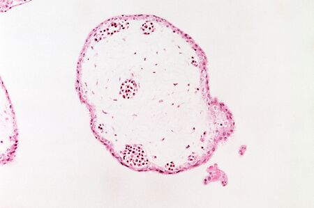 Chorionic villus sampling Stok Fotoğraf - 129130519