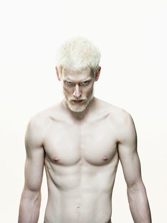 Albino man Standard-Bild
