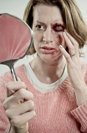 Woman Examining Her Bruised Face