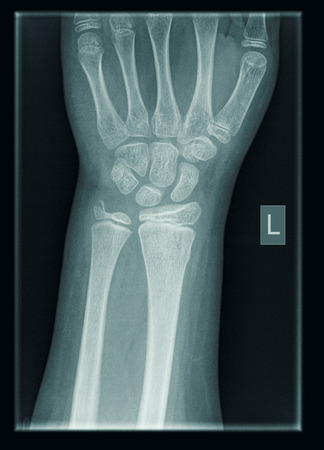 X-Ray Of Wrist Of  9 Year Old Male Patient With Distal Radius And Ulna Fractures Stock Photo