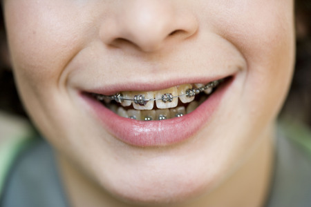 alignments: Close up mouth with brace