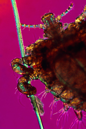 peril: Close up of crab louse on hair