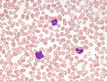 Close up of myelogenous leukemia cells