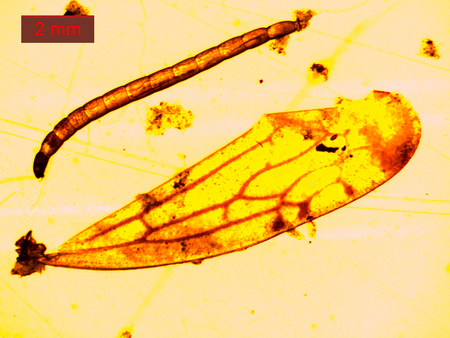 photomicrograph: Mosquito larva under a microscope