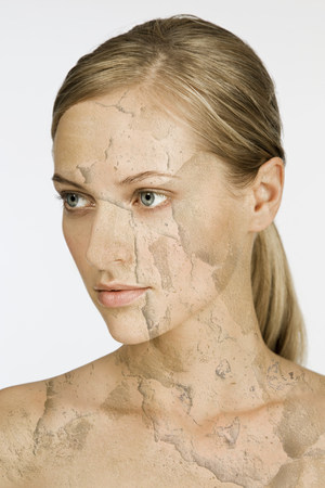 only 1 woman: Woman with cracked and peeling skin LANG_EVOIMAGES