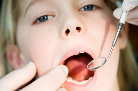 Girl having dental check up LANG_EVOIMAGES