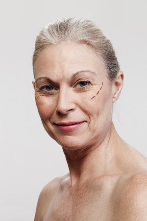 Mature woman with cosmetic surgery marking