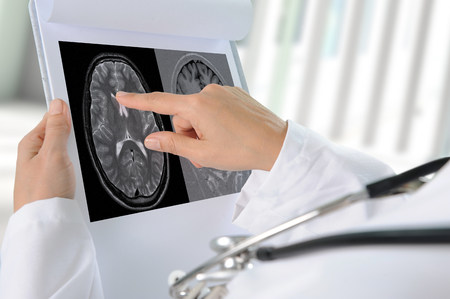 Doctor pointing to printout of brain scan LANG_EVOIMAGES