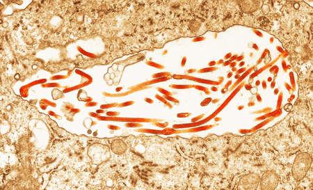 Transmission Electron micrograph of  Ebola virus LANG_EVOIMAGES
