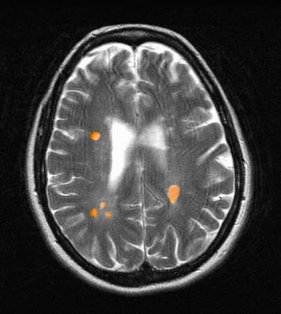 MRI of multiple sclerosis in a 42 year old woman LANG_EVOIMAGES