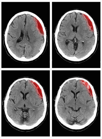 ninety's: CT scan of the head with subdural hematoma