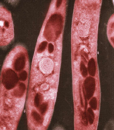 Electron micrograph of Bacillus anthracis bacteria LANG_EVOIMAGES