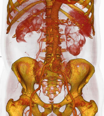 3D CT scan of atherosclerotic plaque,lower aorta