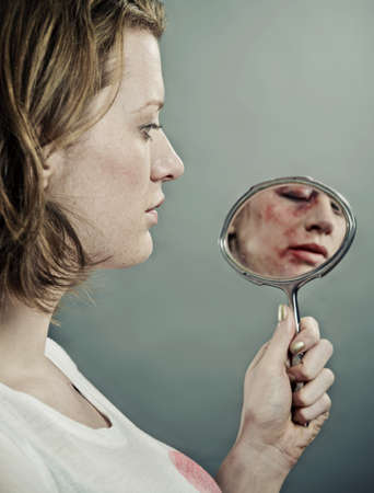 women's issues: Woman examining her bruised face LANG_EVOIMAGES