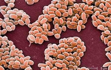 Electron micrograph of anthrax spores