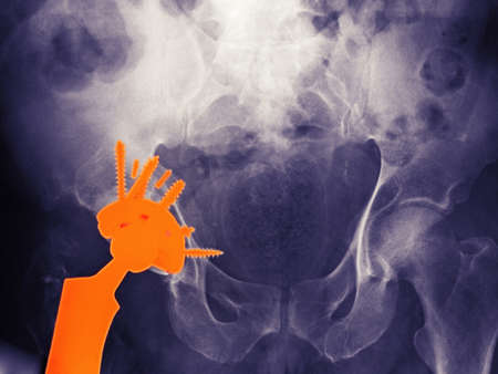ninety's: X-ray of a hip replacement in a 56 year old man