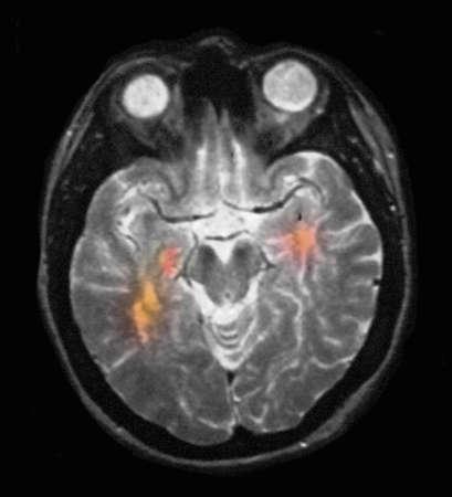 Brain MRI showing multiple sclerosis