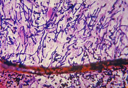 Light micrograph of Candida fungus