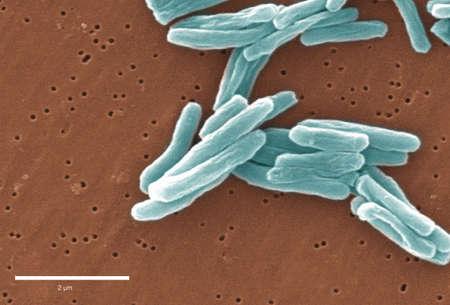 Electron micrograph of Mycobacterium tuberculosis
