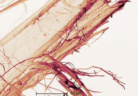 Scanning Electron micrograph of  asbestos LANG_EVOIMAGES