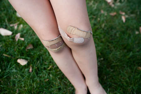careless: Young girl with adhesive plasters on knees