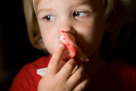 bleed: Boy holding blood stained tissue paper over nose LANG_EVOIMAGES