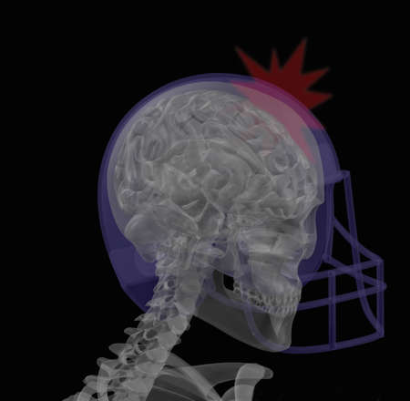 enhanced healthy: Illustration of a football player with concussion
