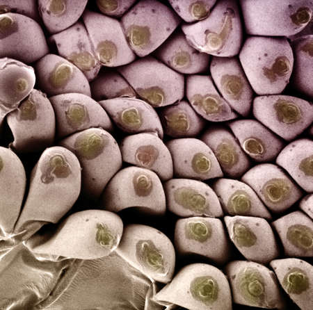 enlarged: SEM Mosquito (Aedes sp.) eggs,overhead view. Magnification  1:160 (printed at 2,5 x 2,5)